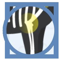 icon-arthritis-elbow-dysplasia