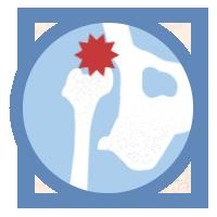 icon-arthritis-hip-dusplasia