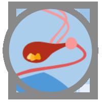 icon-bladder-stones